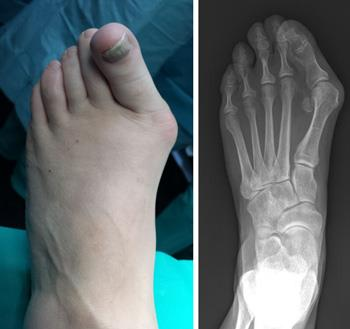 How to Ease Your Bunions without Surgery | 9 Natural ways to Cure!